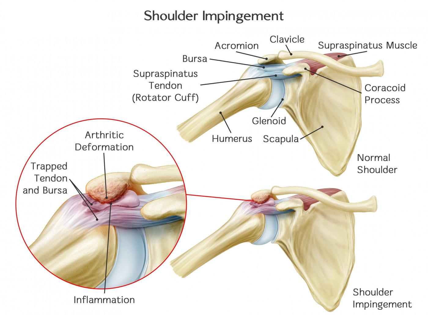 Subacromial Impingement - Best Knee Replacement and Arthroscopy Centre Indore -SN Goyal Joint Institute